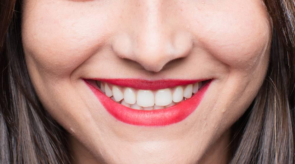 Consejos para una sonrisa perfecta